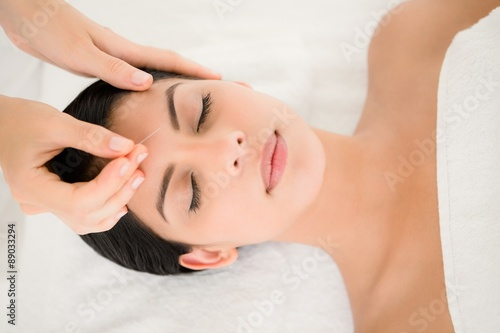 Photo Woman in an acupuncture therapy