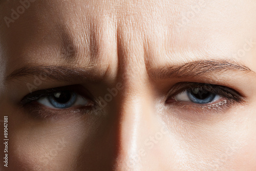 Fotografering  Angry face of a young woman with facial wrinkles closeup