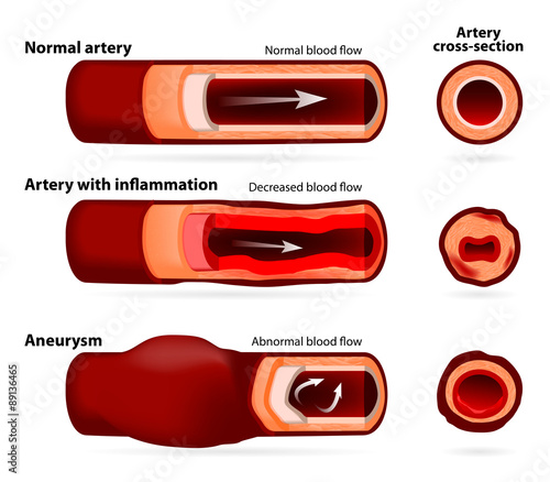 Normal artery, inflamed or narrowed artery and artery with an an Wallpaper Mural
