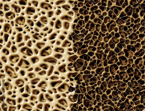 Fotografía  Bone With Osteoperosis