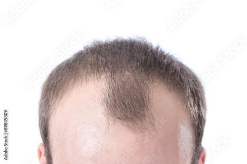 Fotografia, Obraz  Man's Receding Hairline
