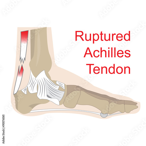 vector illustration of achilles tendon rupture Canvas Print