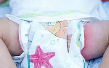 Irritant Diaper Dermatitis