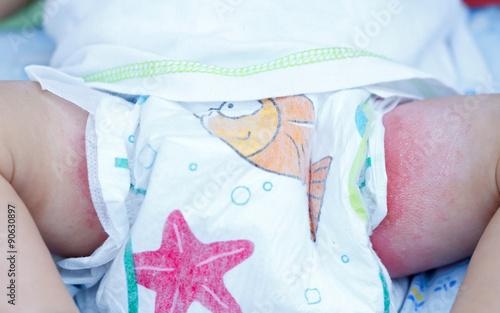 Fotografie, Obraz  Irritant diaper dermatitis