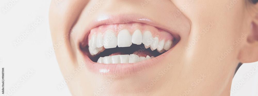 Fototapeta Sorriso denti donna felice