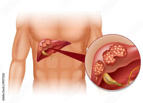 hepatocarcinom ciroza hepatica