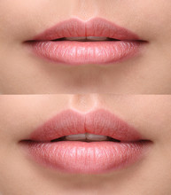 Sexy Plump Lips After Filler I...