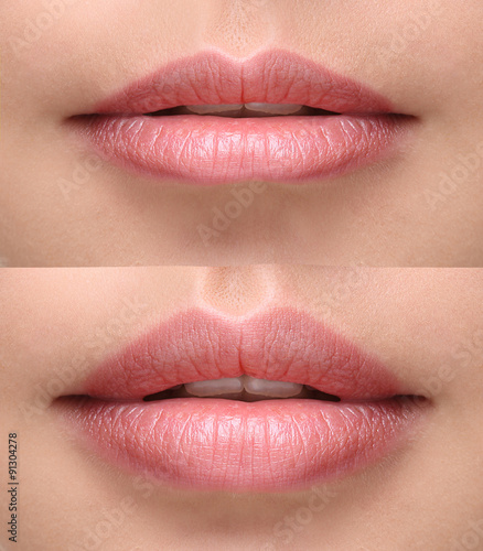 Obraz na plátně Sexy plump lips after filler injection