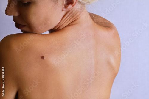 Fotografie, Obraz  Young woman lookimg at birthmark on her back, skin