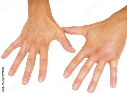 Fototapeta Porovnáním oteklé mužské ruce izolovaných na bílém pozadí