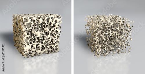 Fotografía  Osteoporose Knochenstruktur, medizinische Illustration