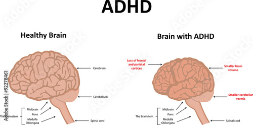 Photo ADHD