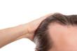 canvas print picture - Mann mit Geheimratsecken, Nahaufnahme freigestellt, Konzept Haar