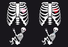 Skeleton Baby Boy And Girl, Vector Set