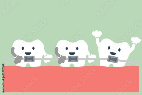 Fotografia  teeth orthodontics