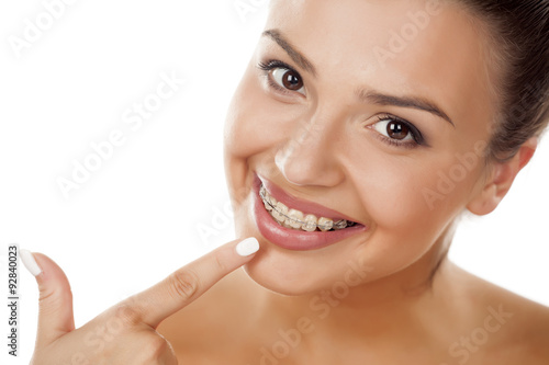 Fotografia  smiling young woman pointing a finger on her braces