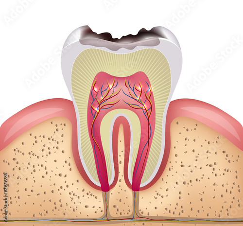 Tooth cross section with dental caries Fototapeta