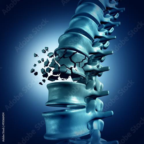Obraz na płótnie Spinal Fracture