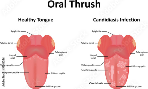 Fotografie, Obraz Oral Thrush