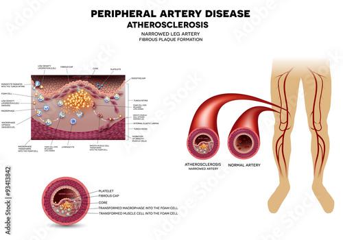 Fotografía  Leg artery disease, Atherosclerosis