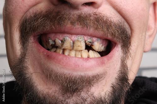 Fotografie, Obraz  Bad teeth smoker sick