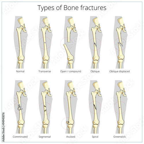 Types of bone fractures medical educational vector - Buy this stock ...