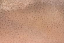 Hippopotamus Skin As Background