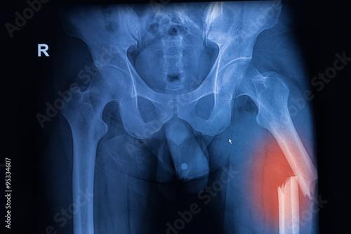 Fotografía  Imagen de rayos X tanto de la cadera que muestra la fractura de fémur en el lado