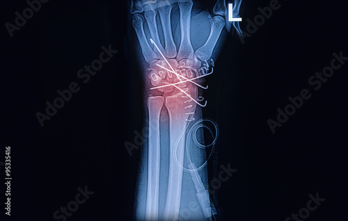 Fotografie, Tablou X-ray image of wrist joint, Showing radius fracture with k wire