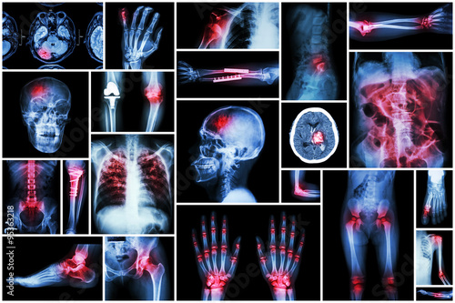 X-ray multiple disease ( stroke (CVA) , fracture , shoulder dislocation , bowel Fototapeta