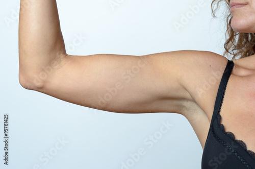 Fotografia, Obraz  Middle aged woman showing flabby arm