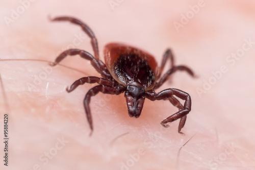 Close up Macro of Deer Tick Crawling on Skin