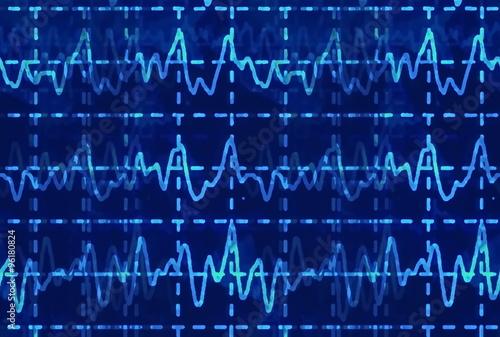 brain wave on electroencephalogram EEG for epilepsy, illustration Canvas Print