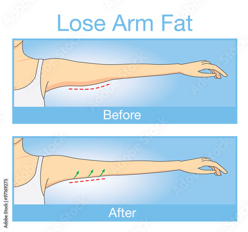 Foto  Illustration about step before and after of woman arm look tightening up after l