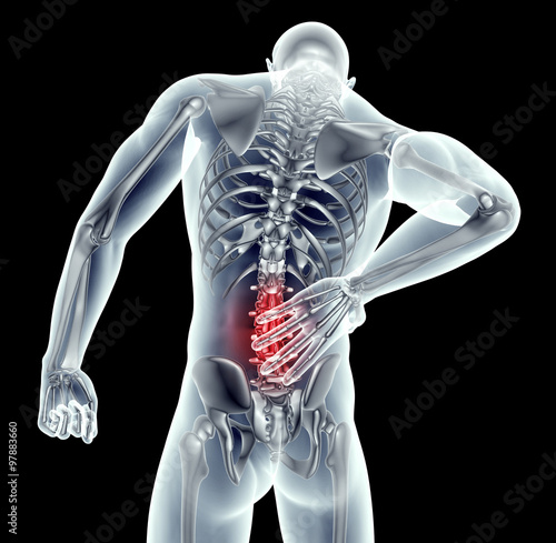 Fotografía  x-ray image man with back pain with clipping path