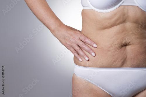 Fotografia, Obraz Flabby stomach of an elderly woman close-up