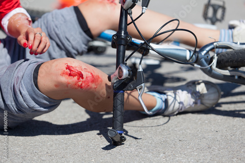 Obraz Bike fall injuries - fototapety do salonu