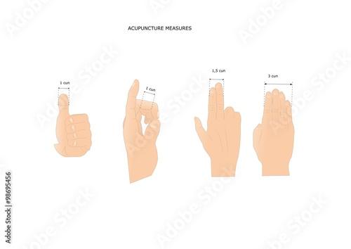 Photo agopuntura: l'unità di misura standard in medicina cinese, il cun