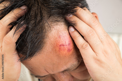 Selective focus on painful red swollen forehead injury Canvas Print