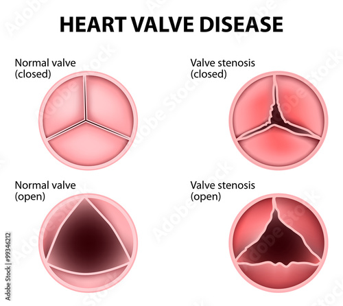 heart valve disease Canvas Print