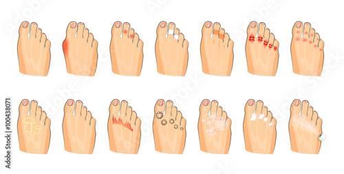 Valokuva  various foot damage