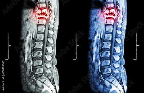 Fotografía  Spine metastasis ( cancer spread to thoracic spine ) ( MRI of thoracic and lumba
