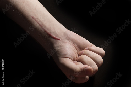 Photo hand with a scar
