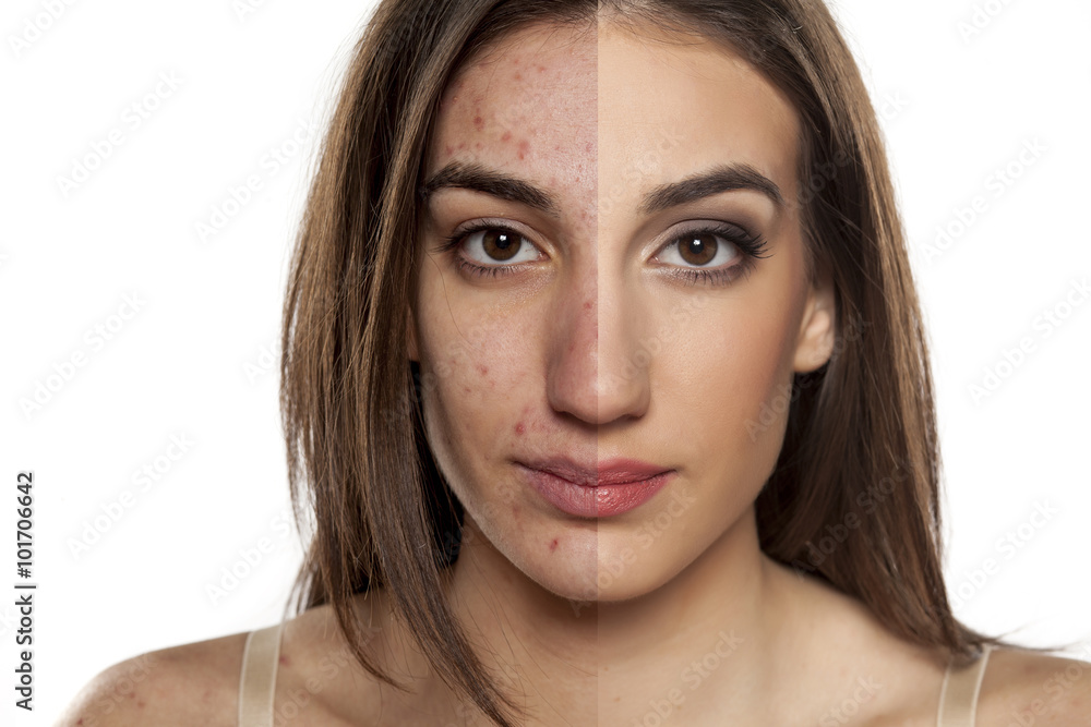 Fototapeta Comparison portrait of a woman with problematic skin without and with makeup