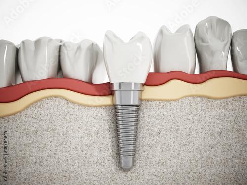 Fotografie, Obraz  Dental implant detail