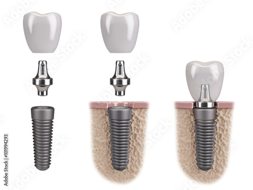 Fotografie, Obraz  Tooth human implant