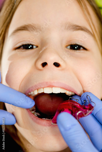 Photo  Little girl getting dental braces