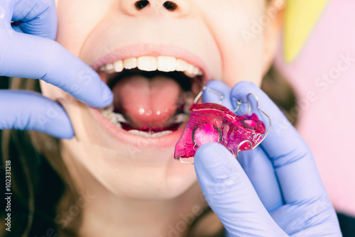 Valokuva Dental braces. Dentist placing braces into little girl's mouth