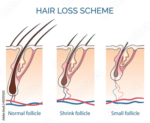 Fotografía Hair loss scheme