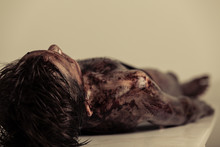 Burnt Body Of A Dead Boy Lying On Table In Morgue